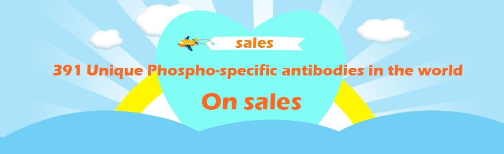 391 Unique Phospho-specific antibodies in the world