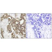 p44/42 MAP Kinase(Phospho-Tyr204) Antibody