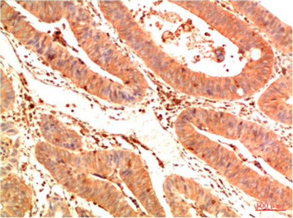 Acetyl P53(K382) Mouse Monoclonal Antibody(1G7)