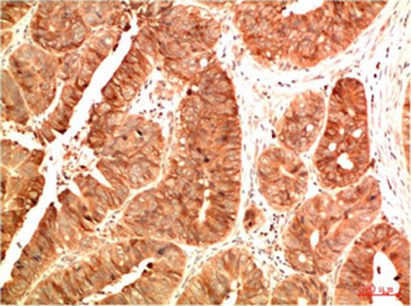 Acetyl P53(K382) Mouse Monoclonal Antibody(15F4)