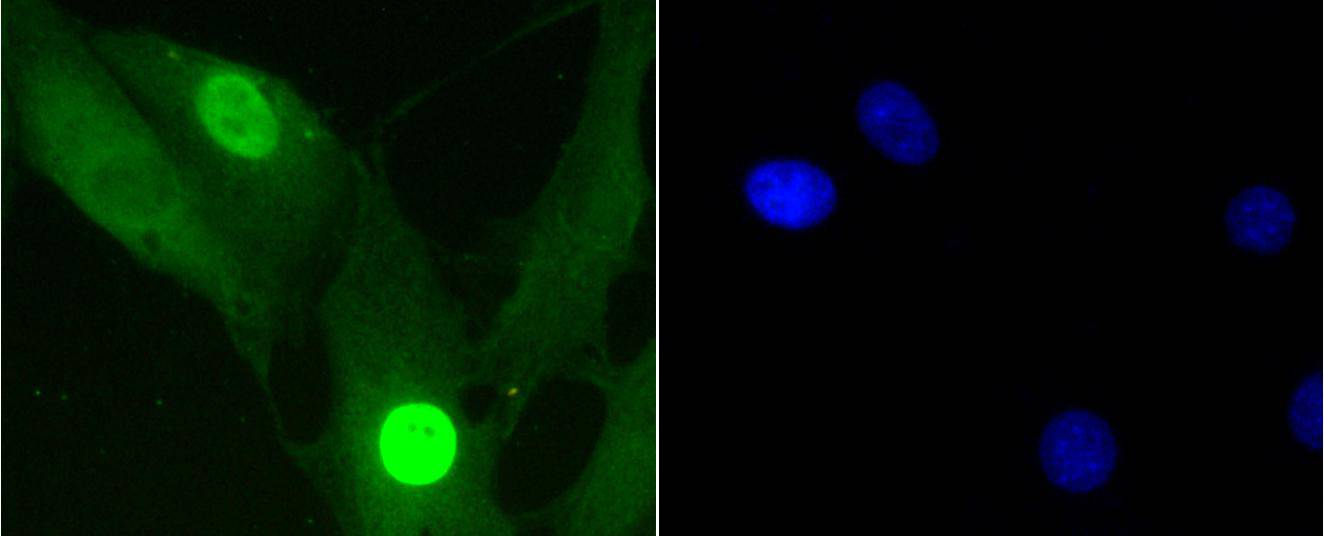 Histone H1.3(Phospho-T17)+Histone H1.4(Phospho-T17) Antibody