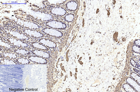 β II tubulin Mouse Monoclonal Antibody (Rodent Preferred)